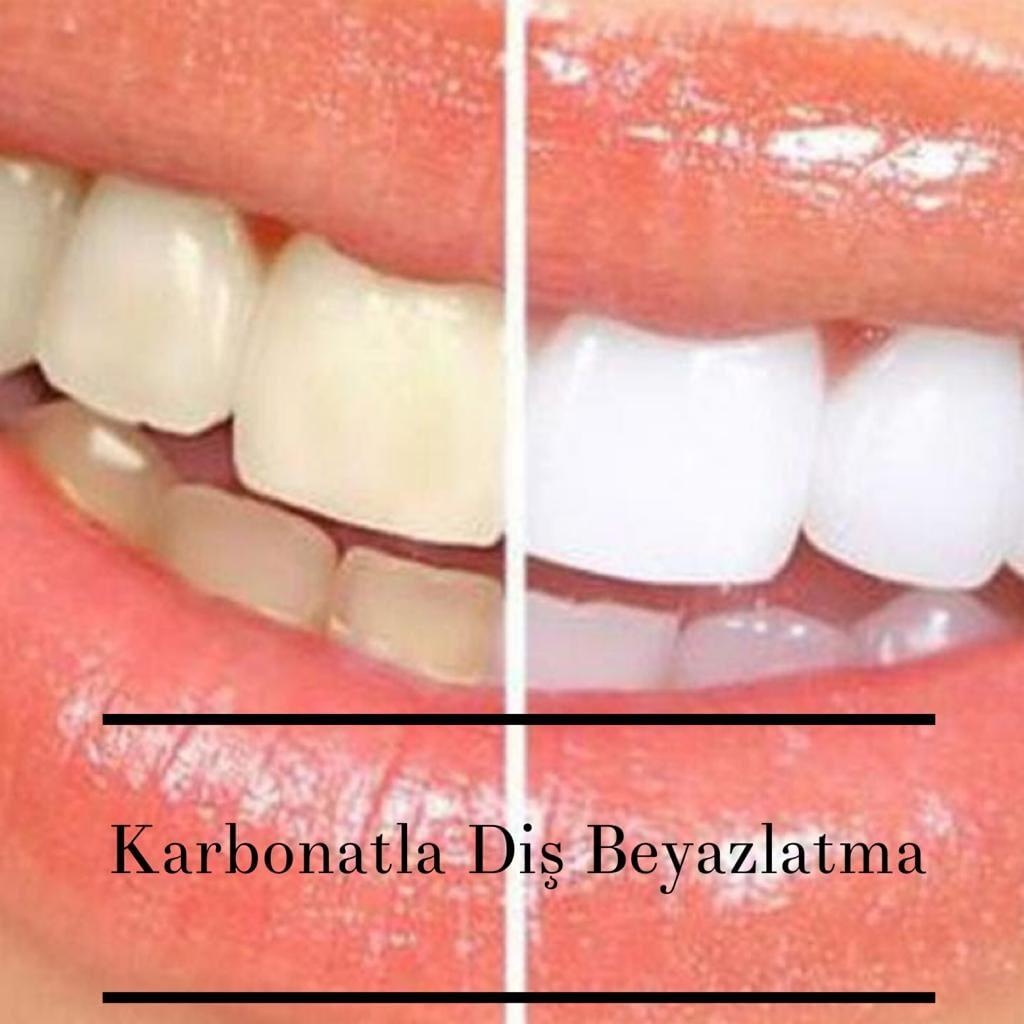 Karbonat İle Diş Beyazlatma Nasıl Yapılır?